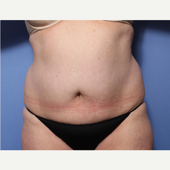 45-54 year old woman treated with Tummy Tuck before 3505974