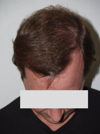 Hair Transplant after 198854