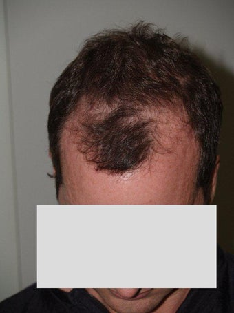 Hair Transplant before 198854