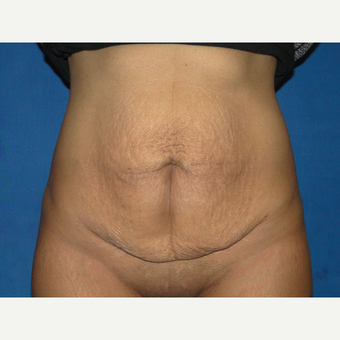 32 year old treated with Tummy Tuck before 3776165