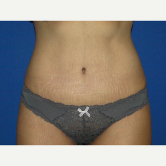32 year old treated with Tummy Tuck after 3776165