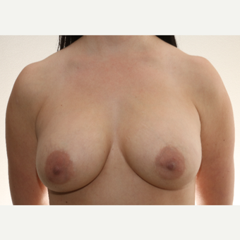 25-34 year old woman treated with Inspira Breast Implants before 2787378