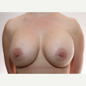 25-34 year old woman treated with Inspira Breast Implants after 2787378