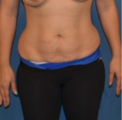 35-44 year old woman treated with Tummy Tuck before 3408354