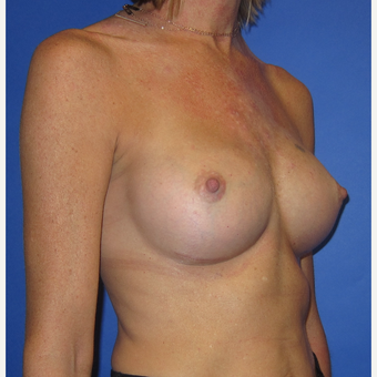 35-44 year old woman treated with Breast Augmentation (371cc) after 3098469