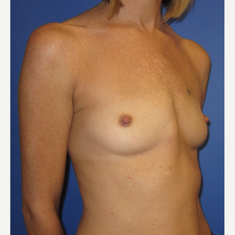 35-44 year old woman treated with Breast Augmentation (371cc) before 3098469