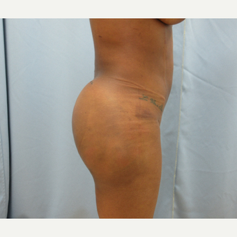 25-34 year old woman treated with Brazilian Butt Lift after 3725040