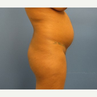 25-34 year old woman treated with Brazilian Butt Lift before 3725040