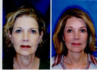 Face Lift, Coapt Cheek Lift, Neck Lift Upper and Lower Bleph and Brow Lift  before 296171