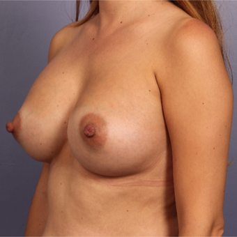 Breast Augmentation after 3646994