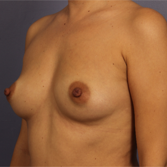 Breast Augmentation before 3646994