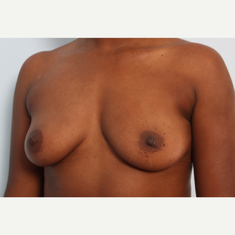 Breast Augmentation before 3345118