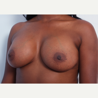 Breast Augmentation after 3345118