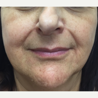 55-64 year old woman treated with Injectable Fillers before 3271451
