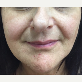 55-64 year old woman treated with Injectable Fillers after 3271451
