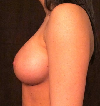 Breast Augmentation after 1242405
