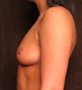 Breast Augmentation before 1242405