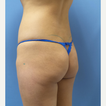 18-24 year old woman treated with Butt Implants before 3378543
