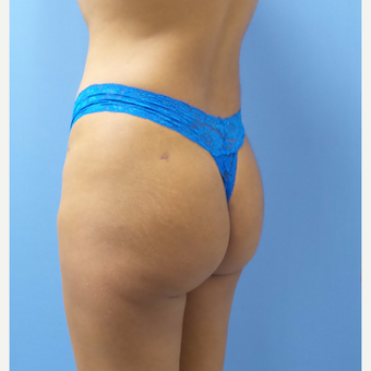 18-24 year old woman treated with Butt Implants after 3378543