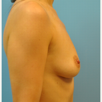 30 year old woman treated with Breast Augmentation, silicone 430 cc ultra high profile, B to D cup before 3508256