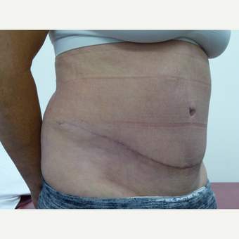 55-64 year old woman treated with Tummy Tuck after 3833229