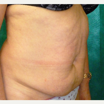 55-64 year old woman treated with Tummy Tuck before 3833229