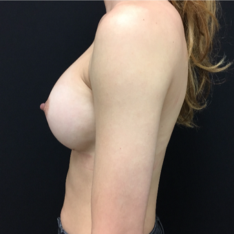 25-34 year old woman treated with Breast Augmentation after 3493963