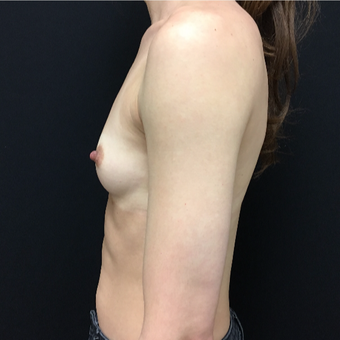 25-34 year old woman treated with Breast Augmentation before 3493963