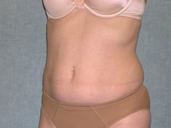 SmartLipo before 607534