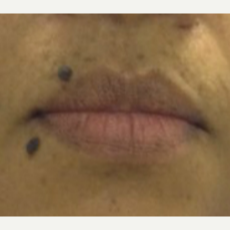35-44 year old woman wanted beauty marks removed