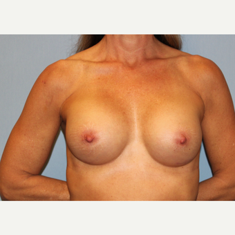 45-54 year old woman treated with Breast Augmentation after 3507283
