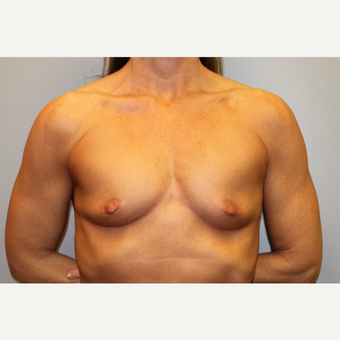 45-54 year old woman treated with Breast Augmentation before 3507283