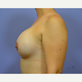 25-34 year old woman treated with Breast Augmentation after 3329327