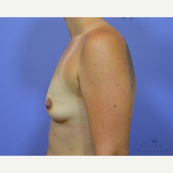 25-34 year old woman treated with Breast Augmentation before 3329327