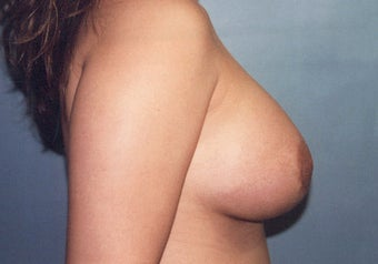 Tuberous Breast Augmentation (Dual Plane) + Periareolar Mastopexy after 349483