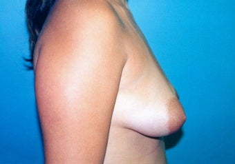 Tuberous Breast Augmentation (Dual Plane) + Periareolar Mastopexy before 349483