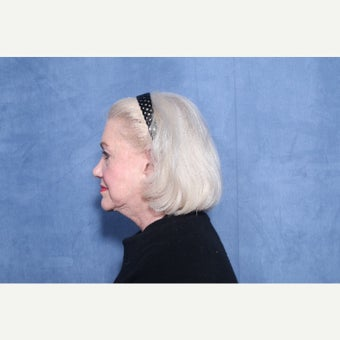 65-74 year old woman treated with Facelift before 2533440