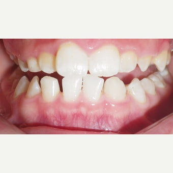 17 or under year old man treated with Braces before 2349747