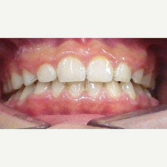 17 or under year old man treated with Braces after 2349747