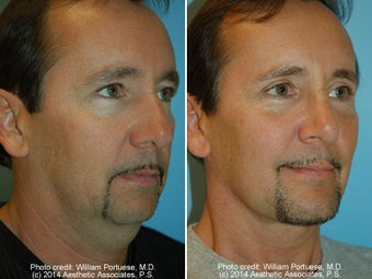 Neck Liposuction before 1389495