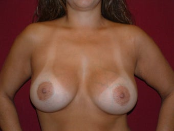 Breast Implants after 683141