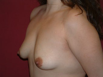 Breast Implants 683141