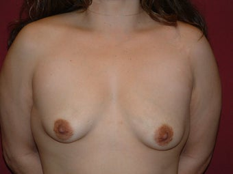 Breast Implants before 683141