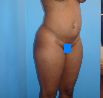 45 year old female treated for excess skin and fat of the abdomen 903188