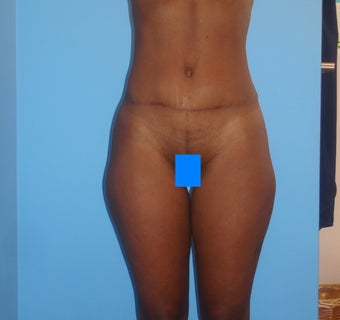 45 year old female treated for excess skin and fat of the abdomen after 903188