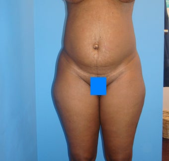 45 year old female treated for excess skin and fat of the abdomen before 903188