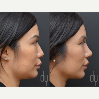 25-34 year old woman treated with Asian Rhinoplasty before 3477451