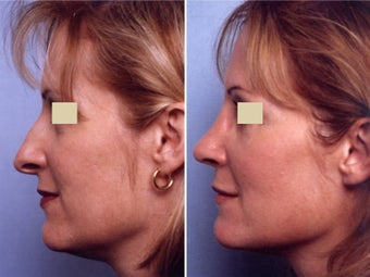 Rhinoplasty before 109660
