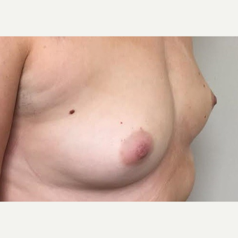 35-44 year old woman treated with Breast Augmentation before 3629336