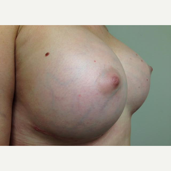 35-44 year old woman treated with Breast Augmentation after 3629336